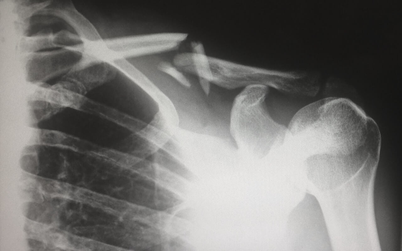 Broken Bones from an Accident Featured Image