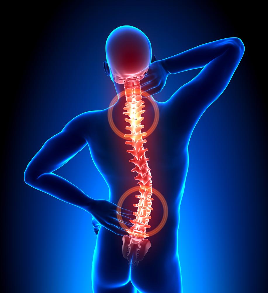 Lesiones de espalda en un accidente Featured Image